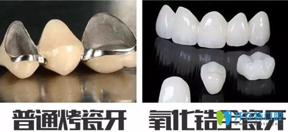 烤瓷牙和氧化锆全瓷牙对比图