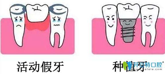 活动假牙和种植牙对比图
