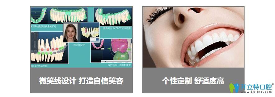 长沙好大夫牙齿矫正的优势图