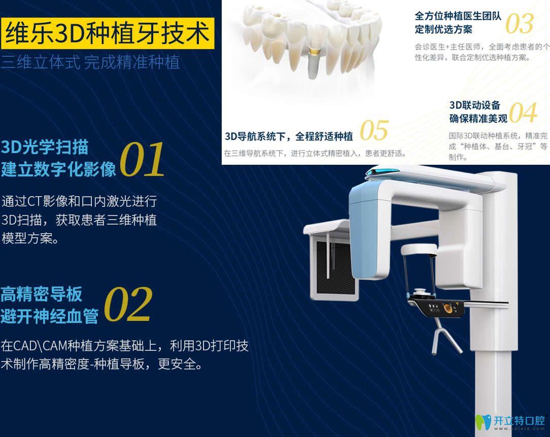 福州维乐口腔3D微创种植牙技术