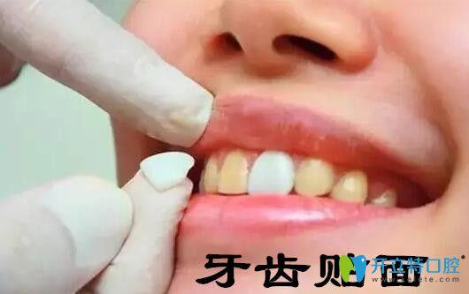 牙齿美容修复之牙齿贴面