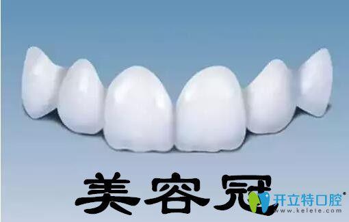 牙齿美容修复之美容冠