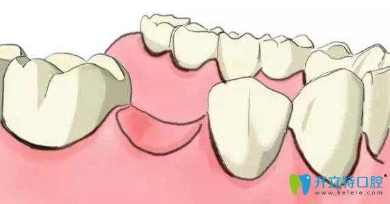牙齿缺失对面部及健康都有影响