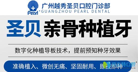 广州圣贝口腔亲骨种植牙可即拔即种