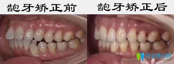 成人牙齿矫正可借鉴东营铂尔口腔龅牙和牙齿拥挤矫正效果