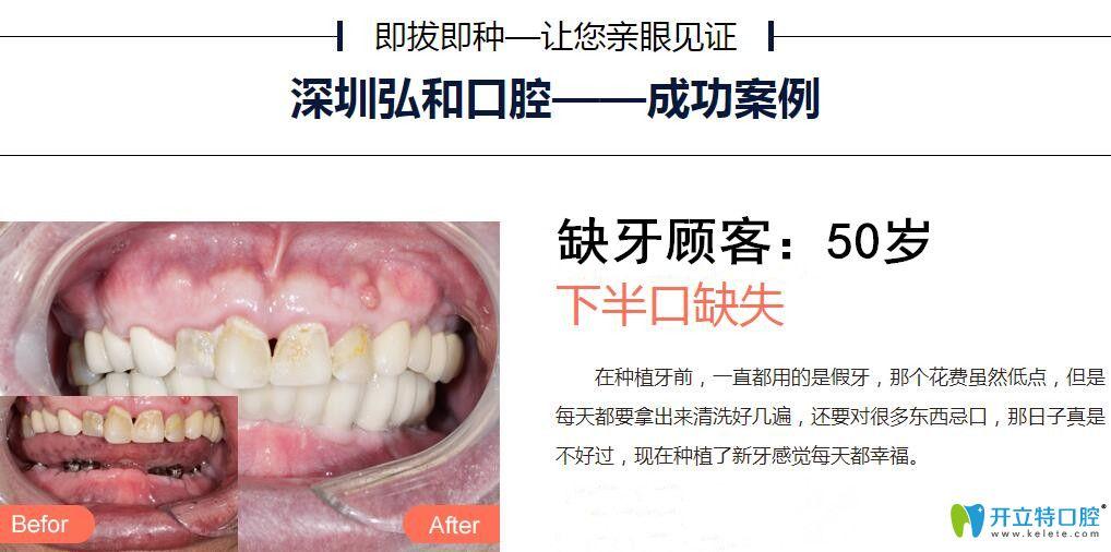 深圳弘和口腔郑建伟医生半口种植牙案例