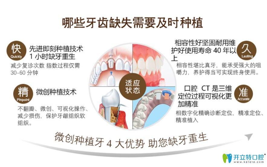 圣贝口腔微创种植牙4大优势介绍
