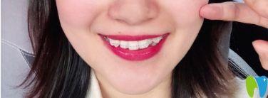 牙套自锁和非自锁图片_半隐形牙套会刮嘴?分享在苏州牙博士做陶瓷托槽半隐形感受 ...