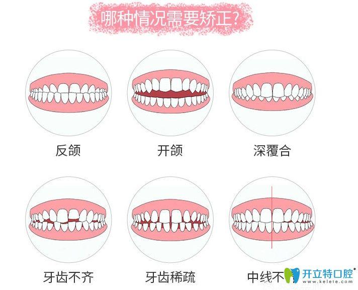 哪些牙齿畸形要进行牙齿矫正