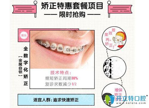 深圳妈咪知道口腔青少年牙齿矫正及儿童MRC矫正价格公布啦