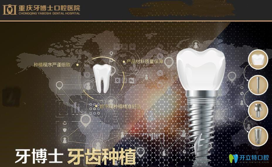 在重庆牙博士口腔微创种植牙后,谈重庆种植牙价格6000元贵不