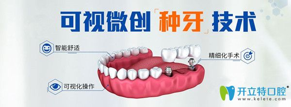 微创即刻种植牙