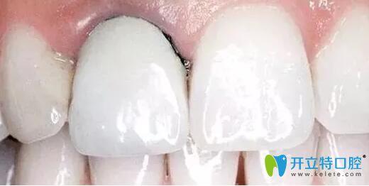 深圳全瓷牙多少钱?参考威兰德、爱尔创二氧化锆全瓷牙价格