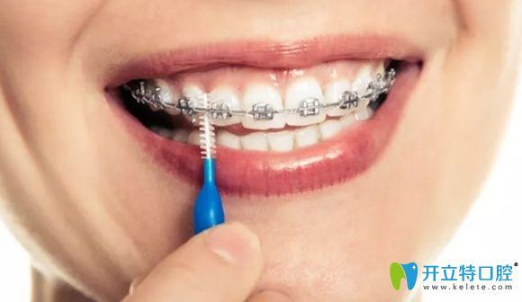 戴牙套期间怎么清洁口腔