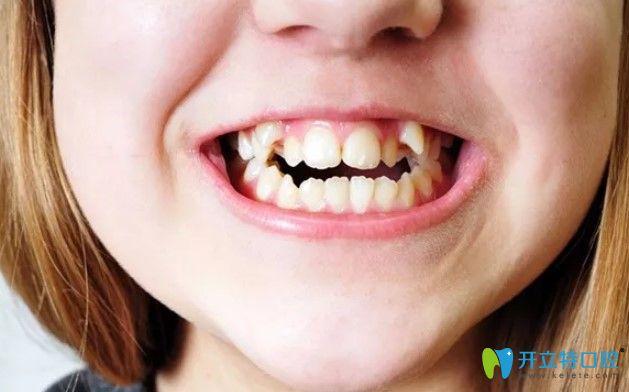 畸形牙齿影响口腔的健康