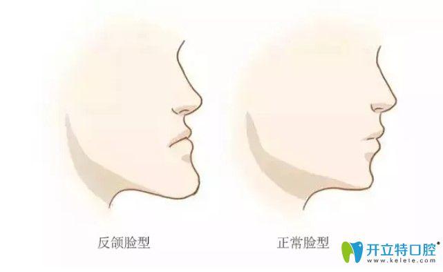 畸形牙齿影响面部软组织发育