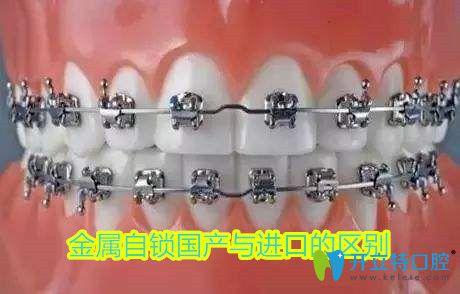 金属自锁托槽是国产还是进口的好,不妨看看两个牙套的区别