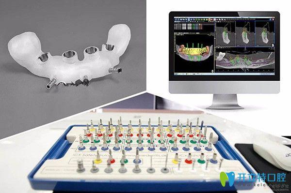 3D导板种植牙