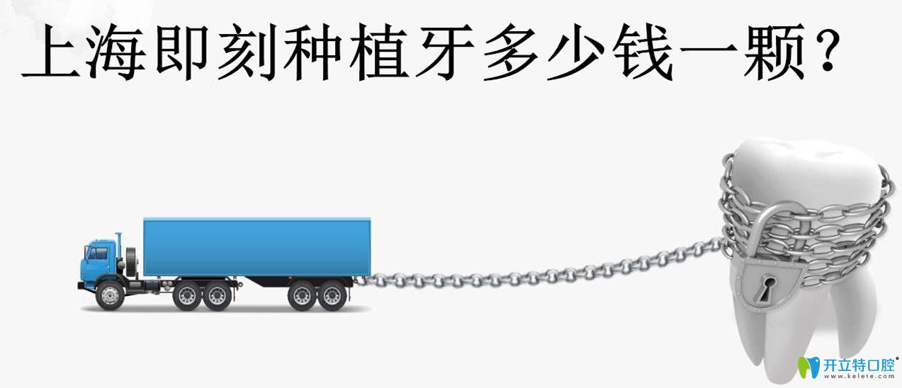 上海即刻种植牙多少钱?了解上海种牙价格附种牙好的医生