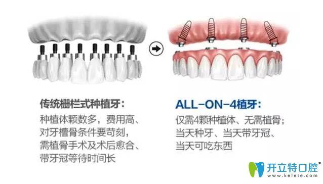传统种植牙方式与all-on-4种植牙方式对比