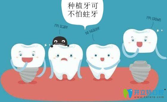 种植牙的牙冠还不怕蛀牙发生
