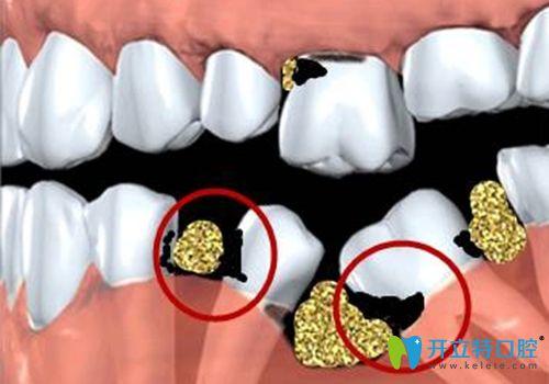 缺一颗牙会有什么影响?武汉仁爱口腔用视频展示缺牙的危害