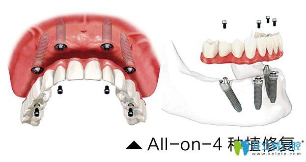all-on-4种植牙修复图示