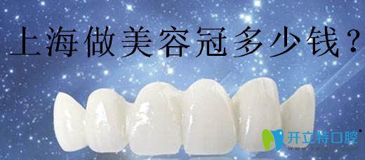 上海美容冠哪家做的好?汇总上海做美容冠好的牙科及价格