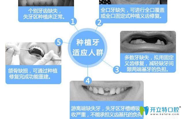 北京瑞冠口腔种植牙价格