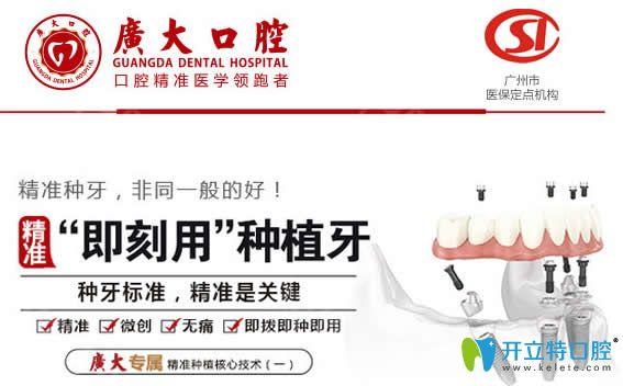 广州广大口腔即可用种植牙技术