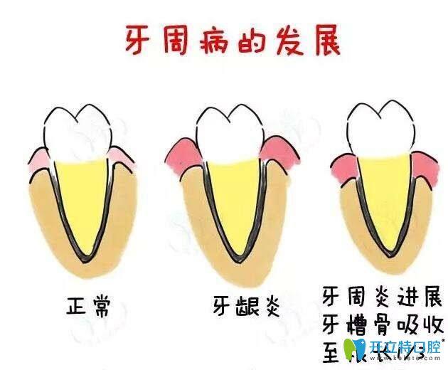 牙周病发展历程