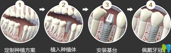世纪河山口腔种植牙流程