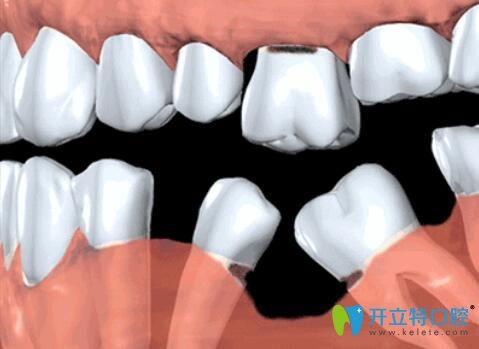 缺牙不补的危害