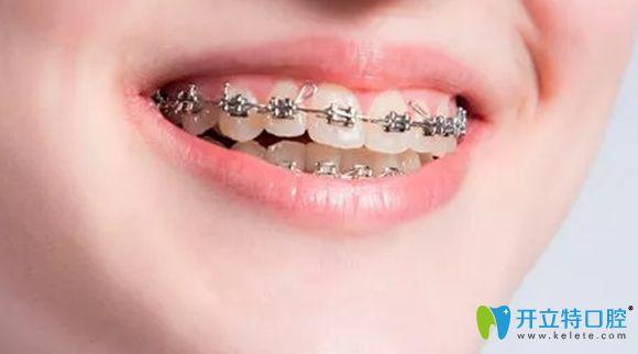 壹加壹口腔金属托槽牙齿矫正特色