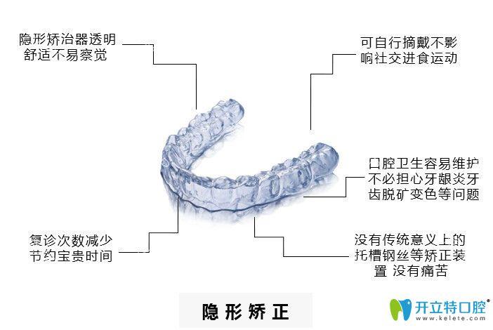 隐形牙套优势介绍