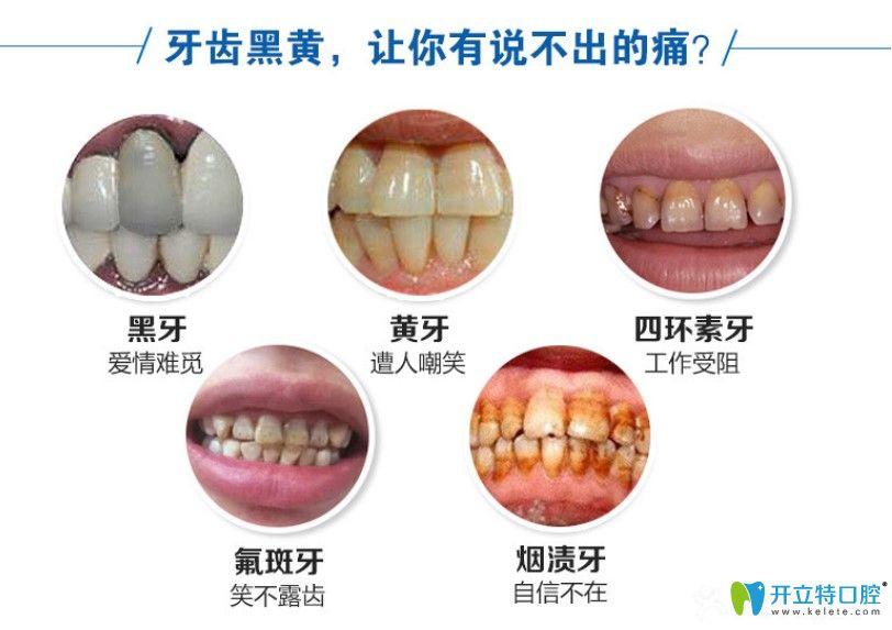 缀美口腔皓齿美白可以解决的牙齿问题