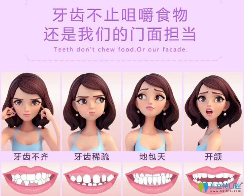 金属托槽牙齿矫正适应哪些症状