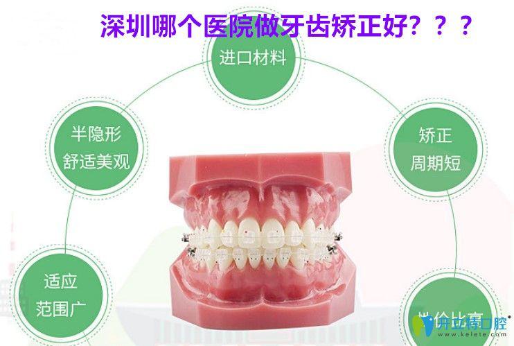 深圳牙齿矫正哪家好?市民反馈美芮口腔正畸价格不高效果好