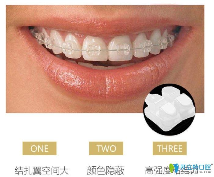 广州壹加壹口腔陶瓷半隐形牙齿矫正价格