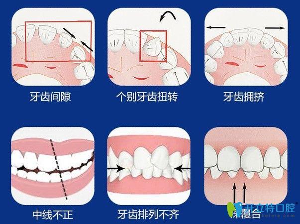 广州壹加壹口腔告诉你佩戴隐形牙套的注意事项