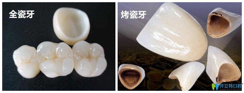 杭州烤瓷牙和全瓷牙冠多少钱?再说说全瓷牙价格高低的区别