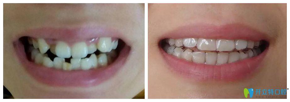 28岁小姐姐矫正牙齿前后照片