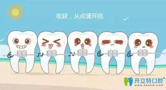 根管治疗后还能箍牙吗,医生说可以的