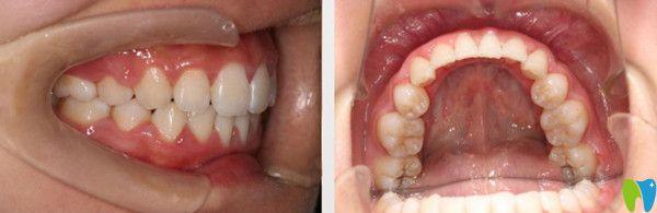 成都圣贝牙科正畸如何?附网友整牙的感受及圣贝箍牙价格