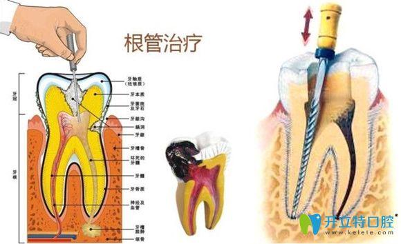 根管治疗的介绍和过程图