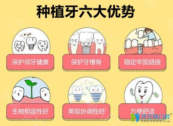 种植牙六大优势