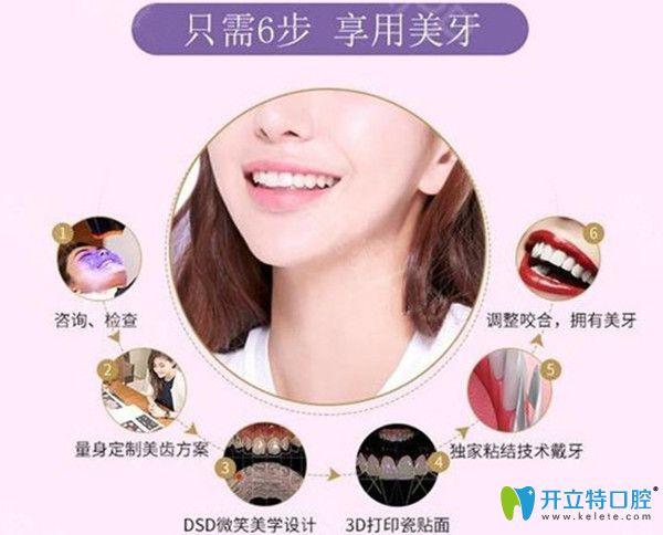 牙贴面的过程