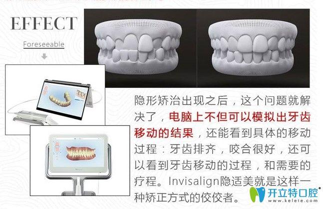 国产隐形牙套和进口的区别是什么