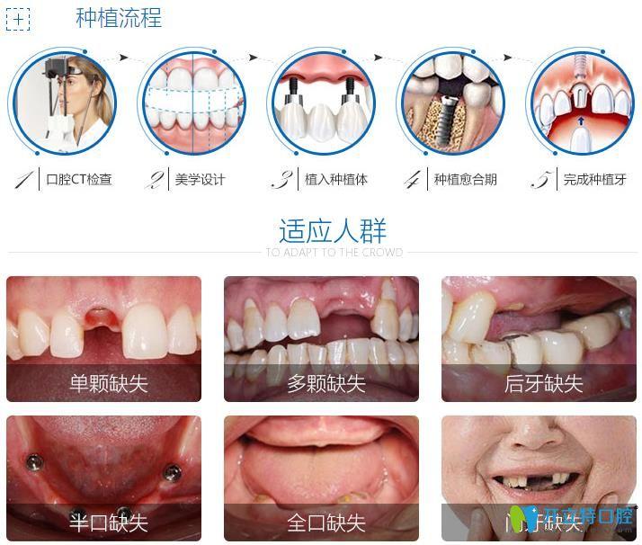 种植牙的流程与适应人群