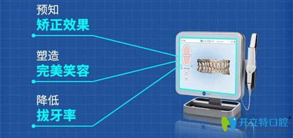 iTero数字化口扫仪